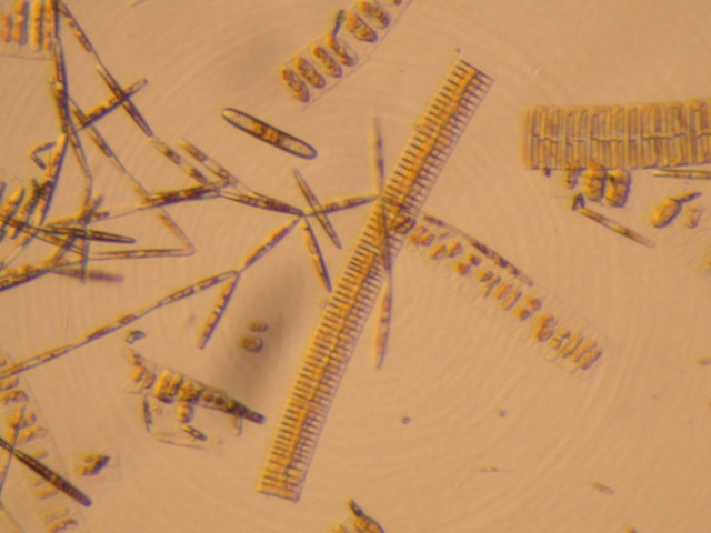 Ice Diatoms: chain forming Fragilariopsis (center), ribbons of Amphiprora (squares with oval centers), and colonies of Nitzschia (long ovals growing end-to-end)